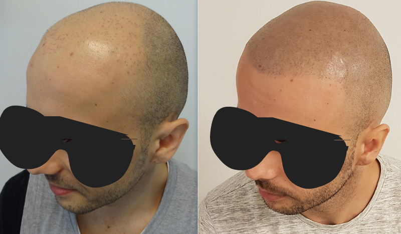 adnan - repair botched hair transplant using tricopigmentation.jpg