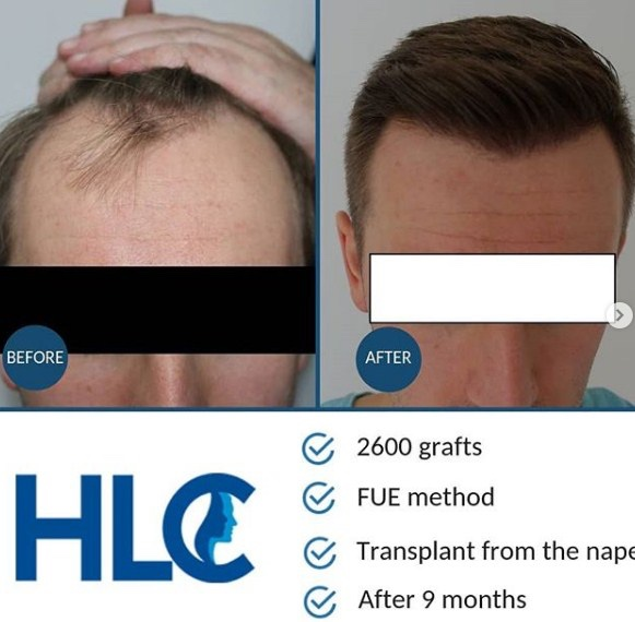 hair-transplant-in-ankara-2.jpg